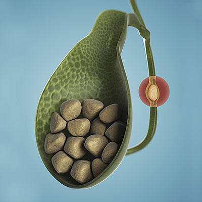 Is Your Gallbladder Preventing You from Digesting Fat???