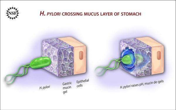 1280px-Ulcer-causing_Bacterium_(H.Pylori)_Crossing_Mucus_Layer_of_Stomach