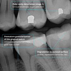 Annotated bitewing X-ray showing trauma impacts on oral health