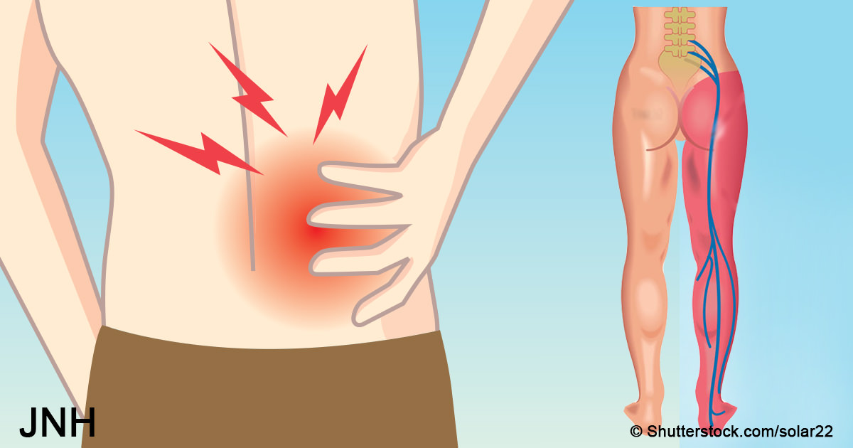 6 tricks that can reverse sciatica pain and soreness in minutes