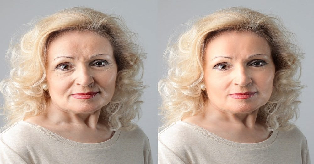 5 Natural Solutions to Easily Prevent Age Spots and Wrinkles