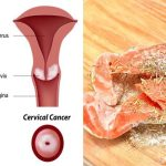 Prevent Cervical Cancer With These Powerful Foods