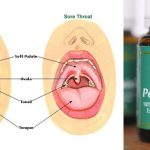 Cure Your Sore Throat Immediately Without Medicine