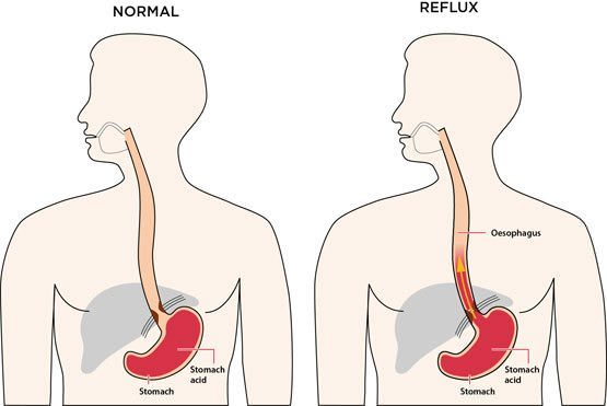 3 Natural Remedies to Get Rid of Heartburn Fast