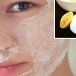 2 Ingredient Face Mask Recipe to Get Rid of Acne Fast