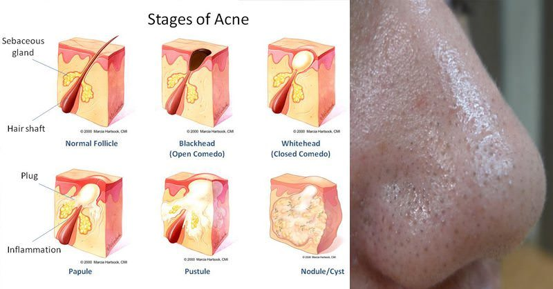 4 Reasons for Adult Acne (And How to Prevent It!)