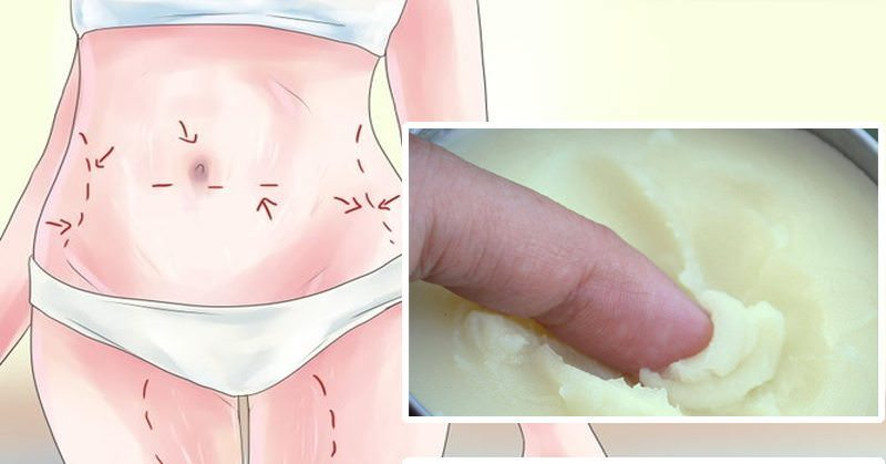 3 Natural Ways to Get Rid of Scars (And Prevent Them!)