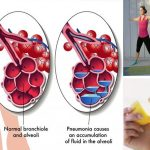 18 Simple Tricks to Prevent Inflammation, Diabetes, Alzheimer's and Heart Disease