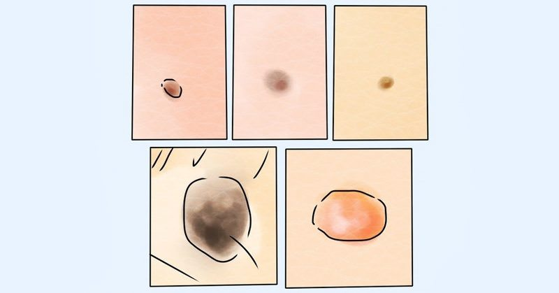 5 Types of Skin Moles (And How to Tell if They're Cancerous)