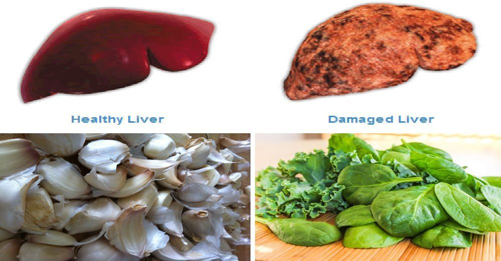 Reverse Liver Damage, Clear Toxins and Improve Digestion with These Natural Solutions (8 Liver-Repairing Foods)