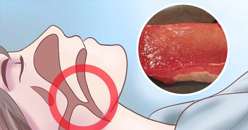 Iron Deficiency Anemia Causes Fatigue and Heart Failure, Here Is How To REVERSE It
