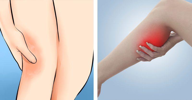 5 Nutrients That REVERSE Restless Leg Syndrome