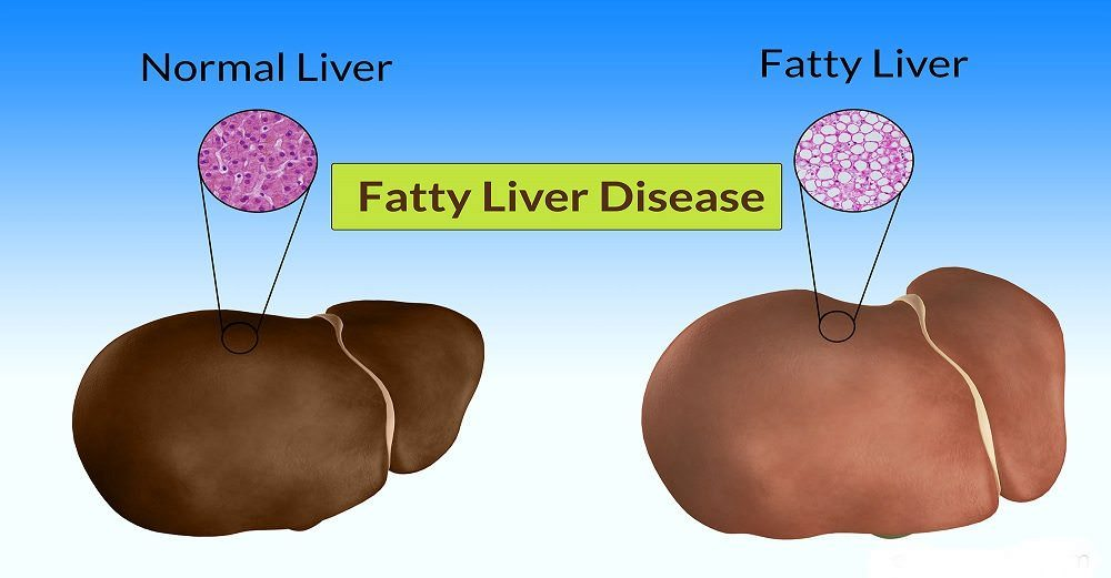 Tipss to treat fatty liver disease
