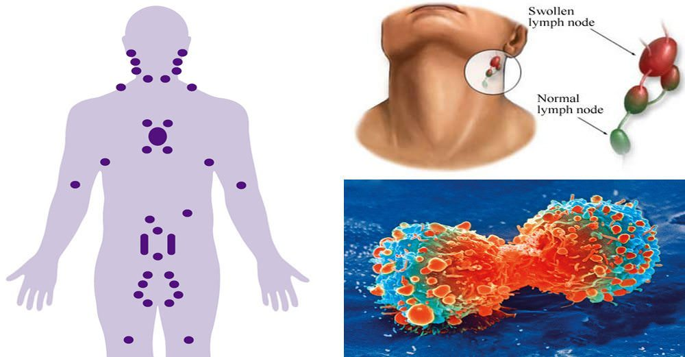 How To Tell If You Have Bacteria, Parasites, or CANCER Just by Looking At Your NECK