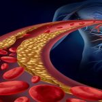 7 Factors to Consider if You're Told Your Cholesterol Is Too High