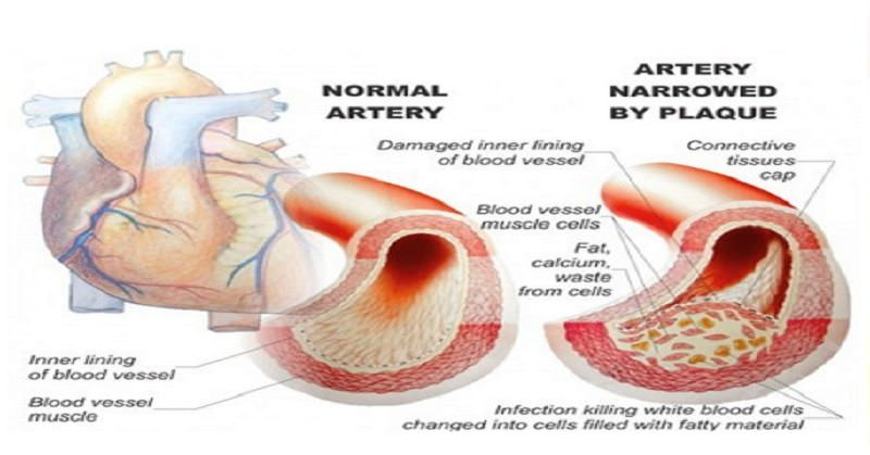 7 Top Foods to Avoid with High Blood Pressure! Some Of These Will Surprise You!