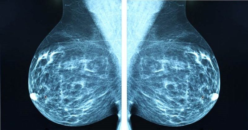Largest, Longest Study on Mammograms Again Finds No Benefit