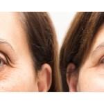 Six Tips to Eliminate Dark Under eye Circles