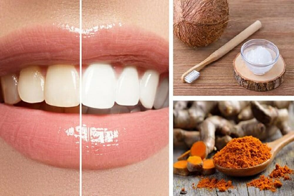 Whiten Your Teeth With These Turmeric And Coconut Oil Cubes