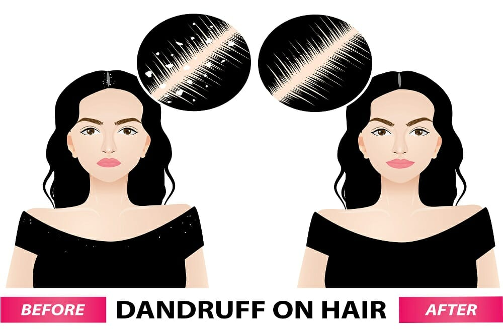 4 All-Natural Anti-Dandruff Home Remedies Your Scalp Really Needs This Winter
