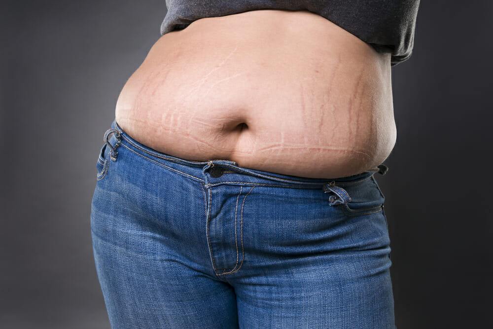 can you eliminate stretch marks