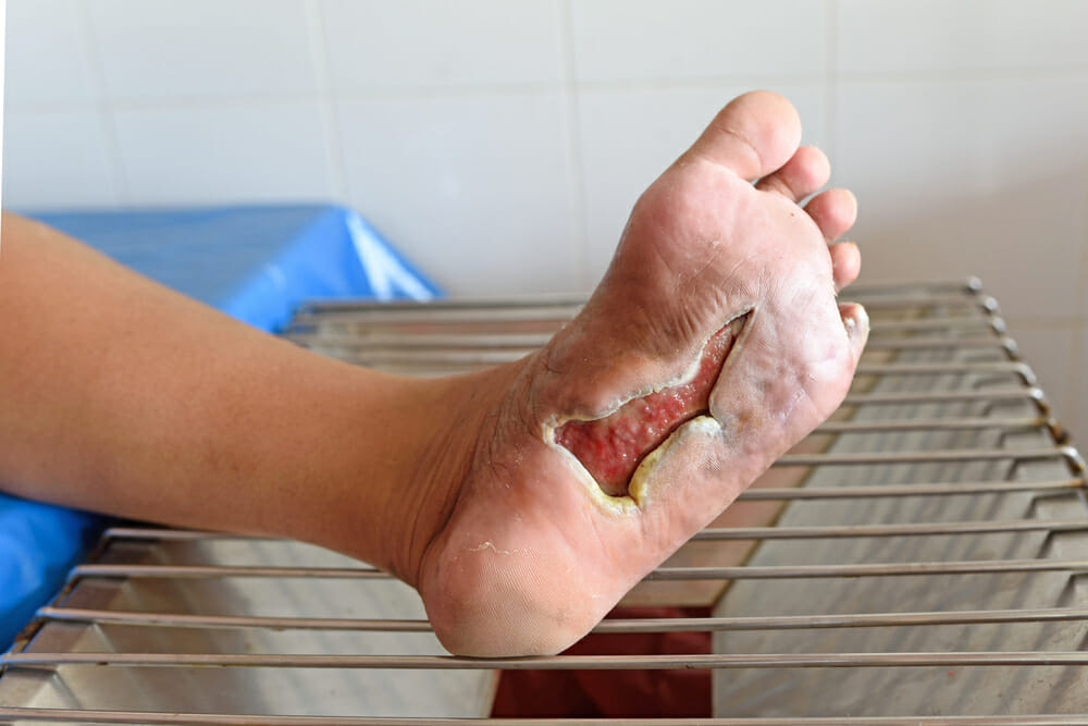 Why Foot Care Is Important For Diabetics