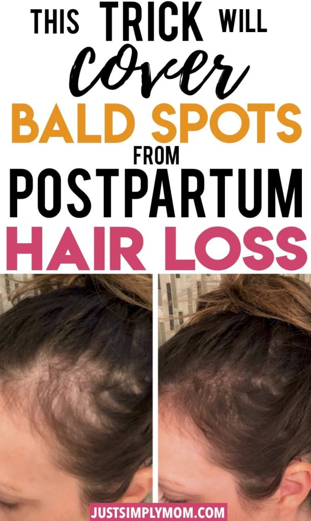 Are you experiencing a large amount of hair falling out after the birth of your child? You're not alone and it's completely normal. If you have experienced postpartum hair loss,  you have probably seen bald patches start to show. Here is my best trick for covering up those bald spots, as well as other tricks for hair regrowth