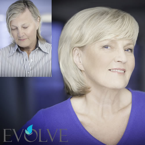 Thinning Hair Solutions Jyl Craven Hair Design