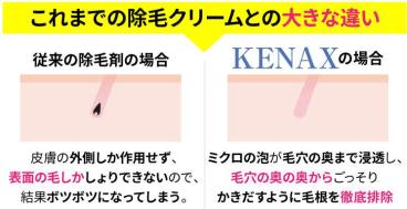 ケナクス(KENAX)除毛クリームの除毛メカニズムの図解