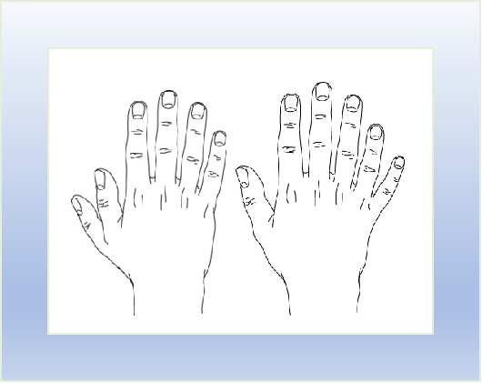 6 doigts - les personnes polydactyles (Polydactylie)