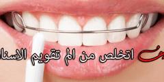 كيف اتخلص من الم تقويم الاسنان