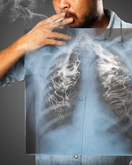 Sigaradan kurtulanlarda akciğer kanseri riski 20 dakika sonra azalmaya başlıyor 1