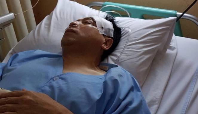 Kepada Polisi, Novanto Mengaku Pingsan Usai Tabrakan