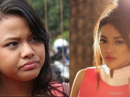 artis indonesia, operasi plastik, perubahan wajah artis