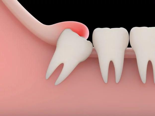 impaksi gigi