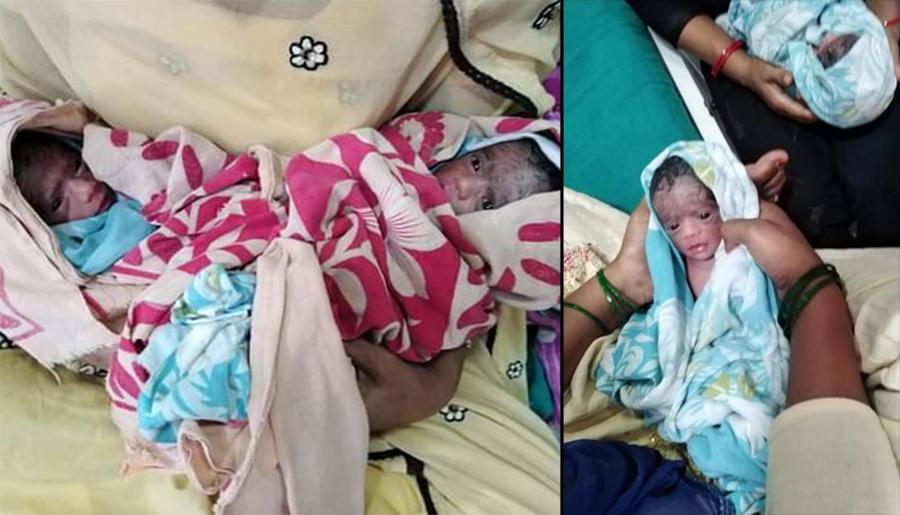 चार बच्चाको जन्म दिएपछि आमाको मृत्यु