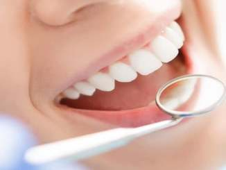 Diş beyazlatma nedir, ne kadar sürer?