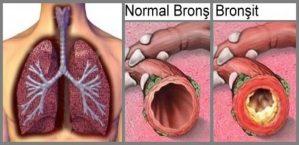 Bronşit Nedir, Bronşit Teşhis ve Tedavisi Nasıl Yapılır ?