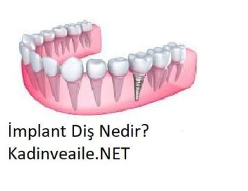 Vidalı Diş Nedir, Kullanım Alanları Nelerdir?