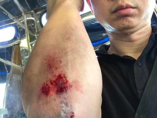 ภาพของตัวผมเอง โชว์ข้อศอกด้านขวาที่ได้รับบาดเจ็บเป็นแผลถลอกจากการขี่สกู๊ตเตอร์ไฟฟ้าล้มบนถนน