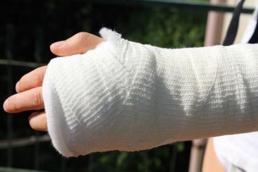 身内で起きた手首の怪我の1症例
