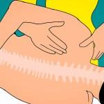 側湾症で様々な部分に痛みや不調を訴えていた患者さんの1症例