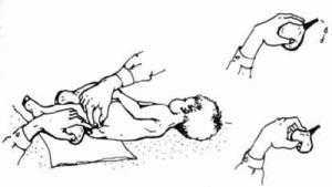 Как правильно сделать клизму младенцу