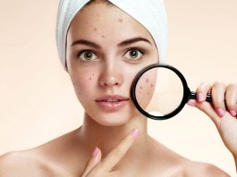 Easy Treatment For Skin Problems