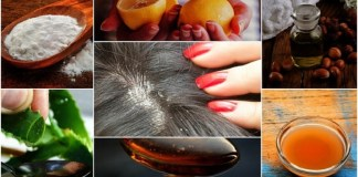 Dandruff Problems & Solutions :