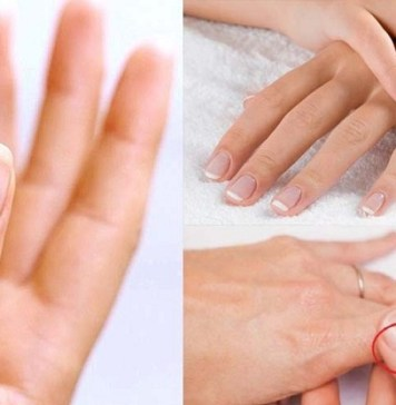 Ingrown Toenail : Health Tips, Beauty Tips, Daily Health Tips, Top 10 Best Health Benefits, Easy To Follow Daily Health Tips