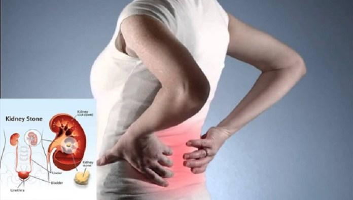 Kidney Stones : Health Tips, Beauty Tips, Daily Health Tips, Tamil Maruthuvam Tips, Top 10 Best Health Benefits, Health Tips Daily Life