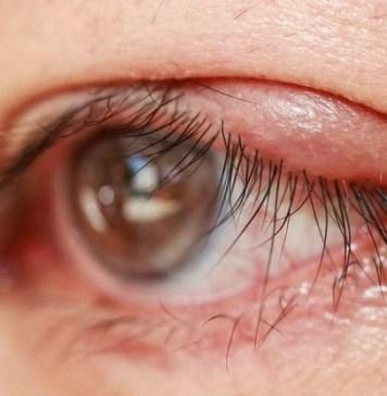 Blepharitis Chalazion Treatment : Health Tips, Beauty Tips, Daily Health Tips, Tamil Maruthuvam Tips, Top 10 Best Health Benefits, Health Tips Daily Life