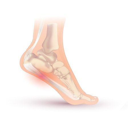 Plantar Fasciitis. Injurymap, CC BY 4.0 https://creativecommons.org/licenses/by/4.0, via Wikimedia Commons