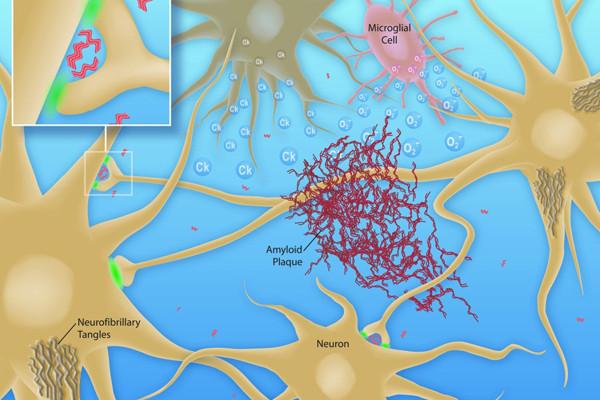 Θεραπεία Alzheimer μέσω υπερήχων
